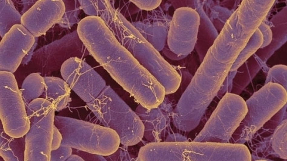 Bacteroides species are some of the most common bacteria in the human gut.