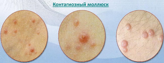 kontagioznyj-mollyusk-1